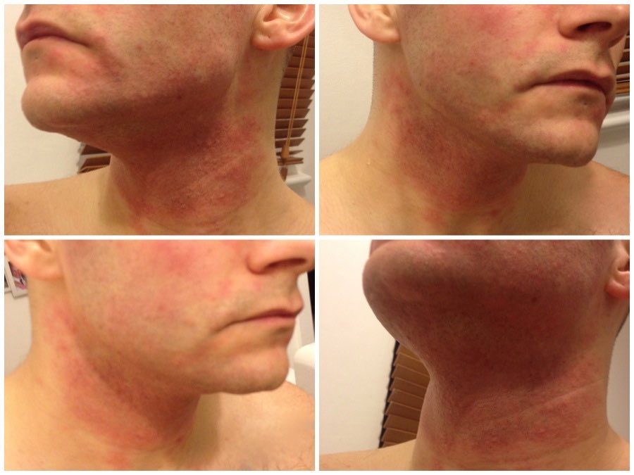 How To Treat An Allergic Reaction To Skin Care Products - Andy ...