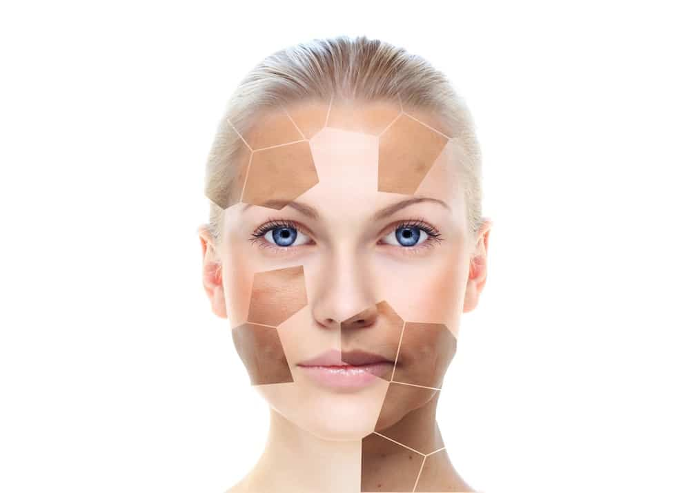 Hyperpigmentation Treatment in Harborne, Birmingham