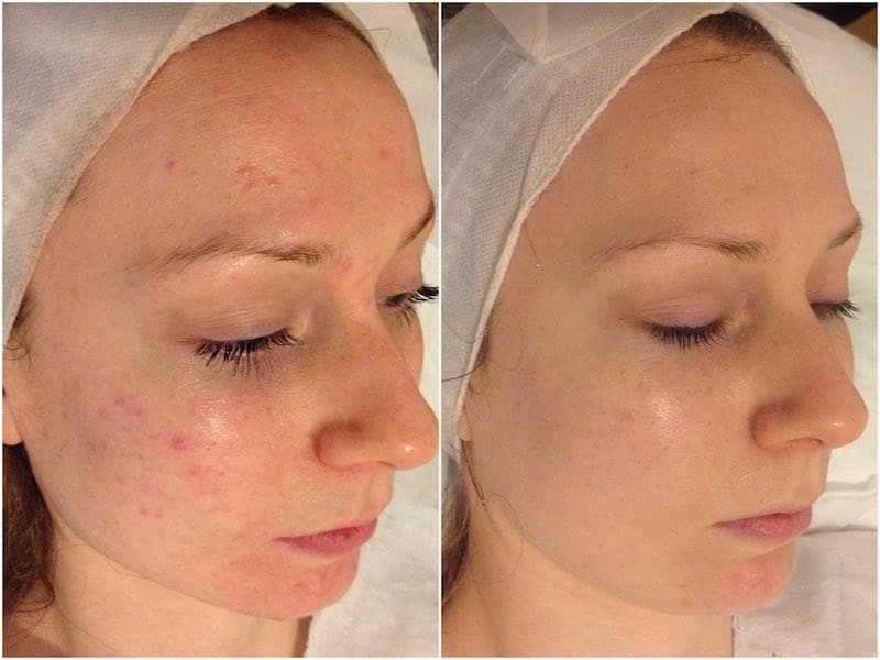 sensitive skin and acne